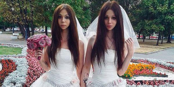 दुनिया के पहले 'जुड़वा' पति-पत्नी, लॉ को तोड़कर की है शादी