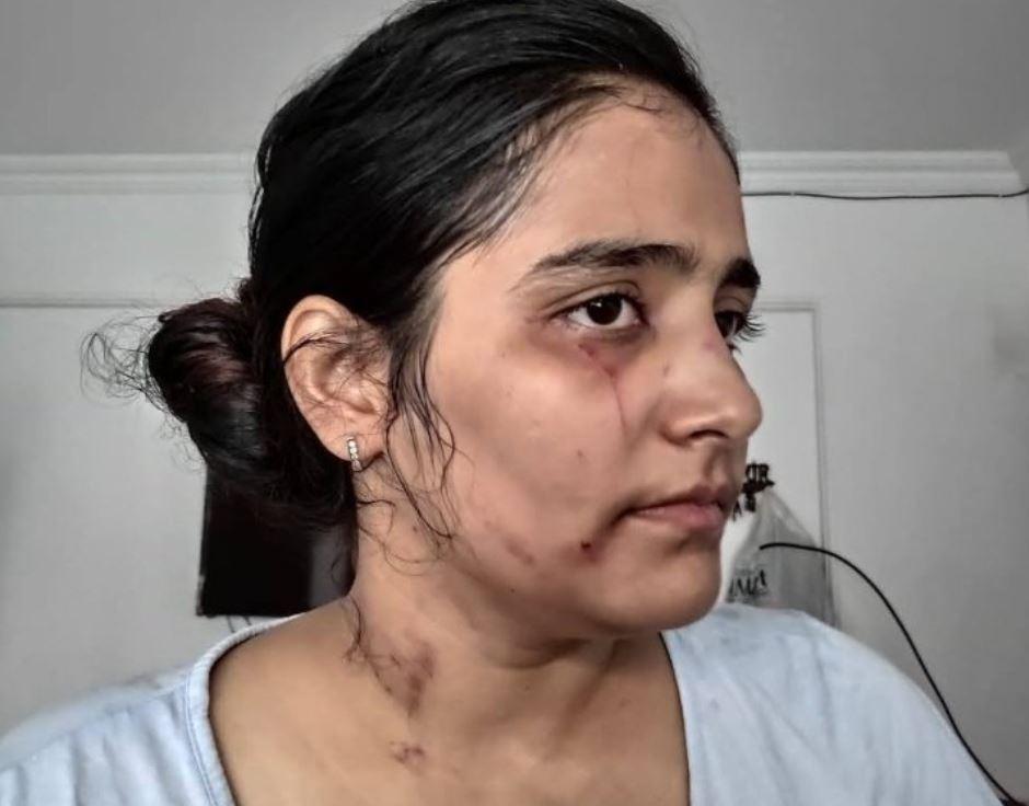 एक्ट्रेस ने पति पर लगाया हिन्दू नाम बताया शादी करने का आरोप, हुई घरेलू हिंसा