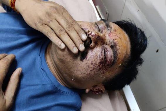 बदमाशों ने SO को मारी गोली, एनकाउंटर में मारा गया आरोपी खनन माफिया