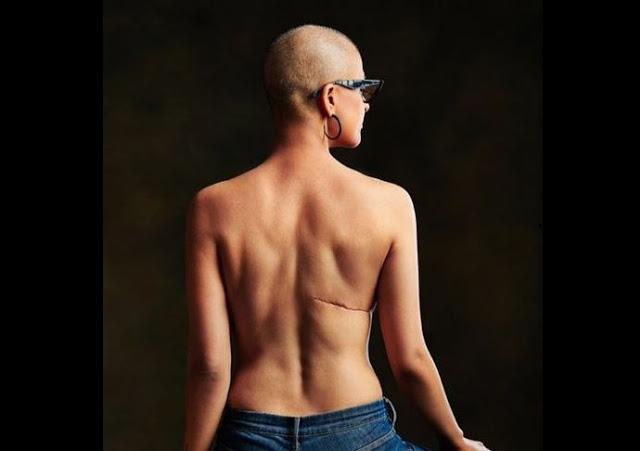 World Cancer Day: आयुष्मान खुराना की पत्नी ने दिखाए सर्जरी के निशान