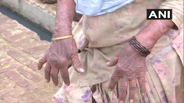 रिफाइनरी से निकल रही सल्फर गैस ने 'तबाह' किया पूरा गांव